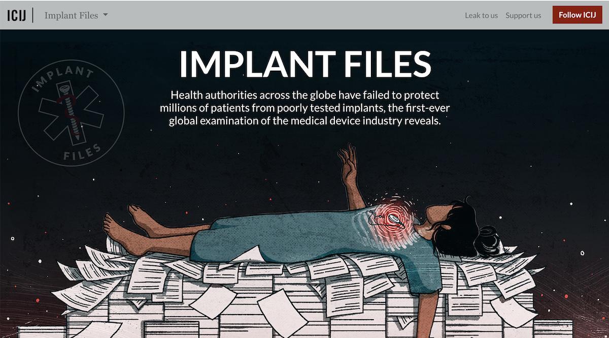 Implant files ()